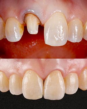 Penn Dental Medicine Predoctoral Clinics