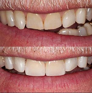 Dentistry by David Pellegrini, DMD, Duxbury, MA